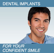 Man smiling - Dental Implants.  For your confident smile