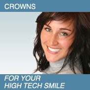 Women smiling - Crowns.  For your high tech smile